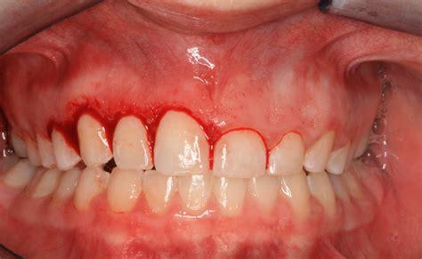 boneloss in teeth picture 13