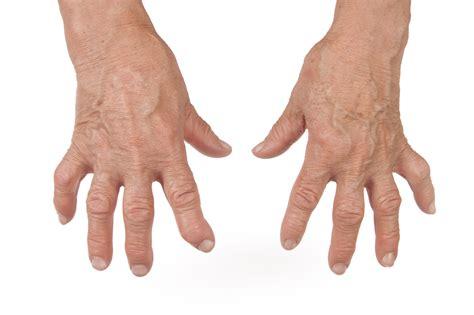 arthritis picture 7