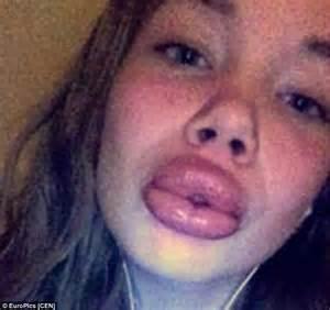 lip plumper penis picture 2