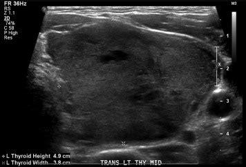blood flow in a nodule picture 7