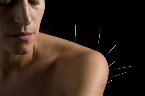 free acupuncture successful treatments of hip bone pains picture 2
