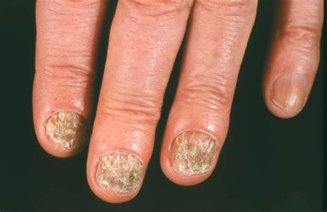 finger nail fungus picture 5
