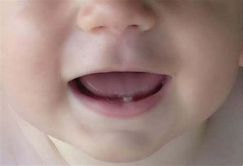 baby teeth pictures picture 6