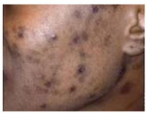 acne dark spots picture 3