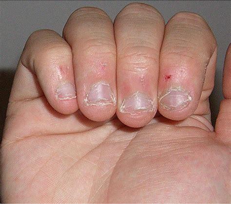 stop fingernails growing picture 3