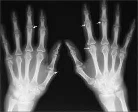 joint pain in fingers picture 2