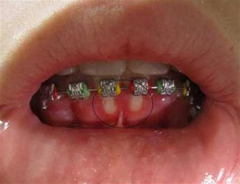 what does oral herpes look like picture 14