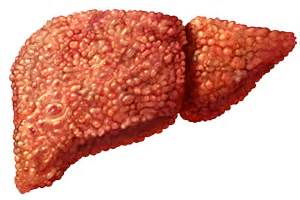 what causes sclerosis of the liver picture 21