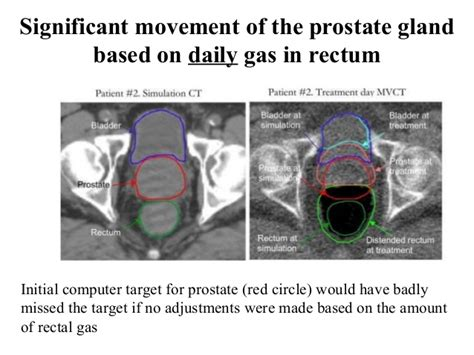 Bowel movements and prostate problems picture 1