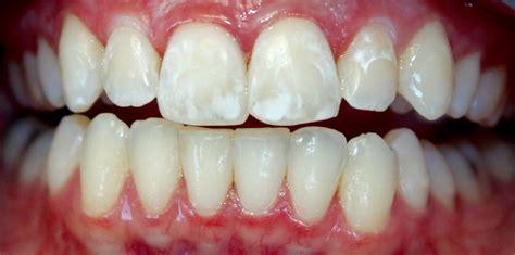 calcium teeth white picture 15