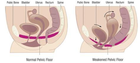 bladder ca treatment picture 5