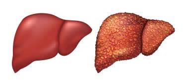 healthy liver picture 3