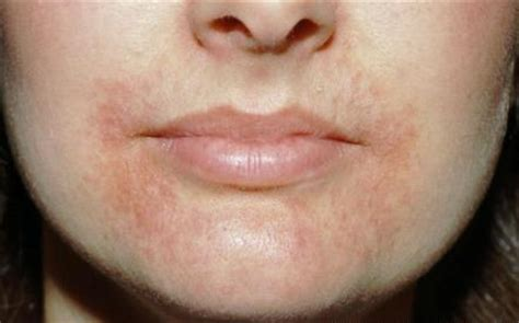 causes of scaling of the lips picture 8