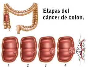 colon cancer diagnosis picture 6