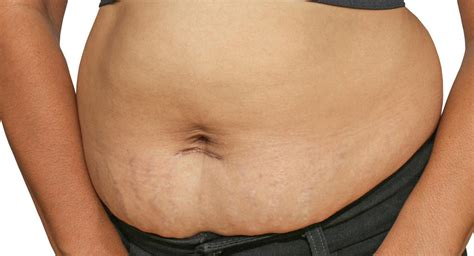 when does the line on your stomach go picture 9
