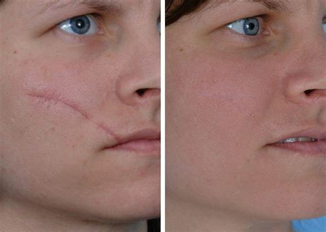 skin care for acne scars picture 5
