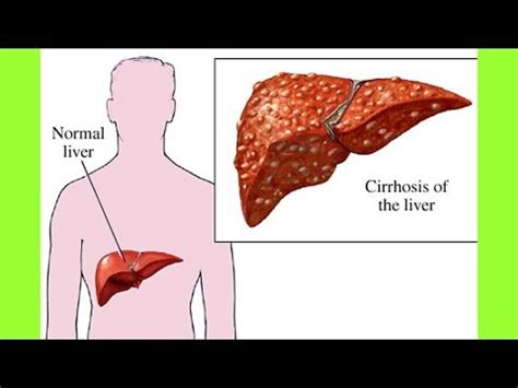 cirrhosis of the liver diet picture 6