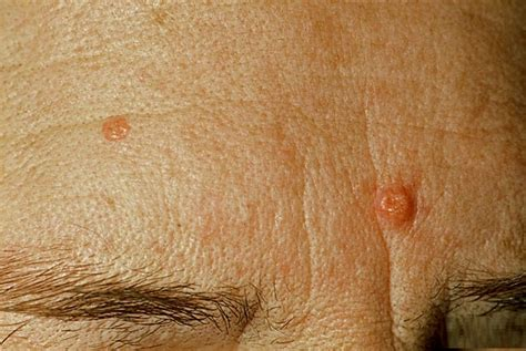 oil cures acne picture 7
