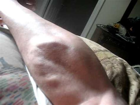 muscle spasms while sleeping picture 6