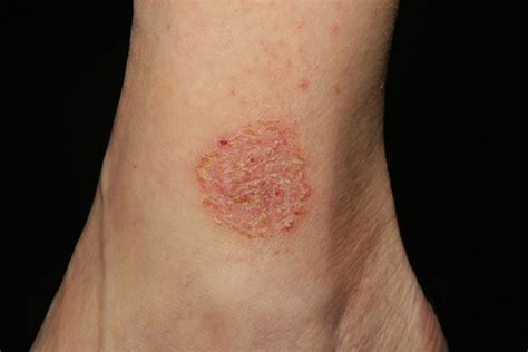 cephalexin itchy skin picture 5