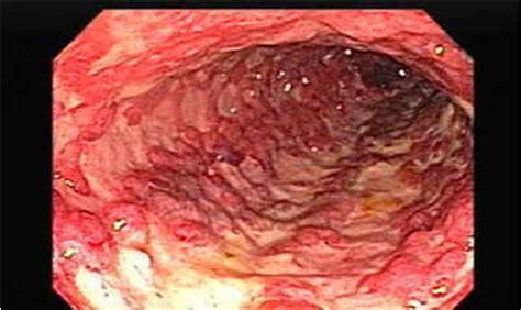 severe mega colon picture 8