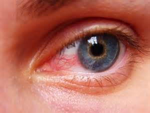dry, red eyes, liver problems picture 9