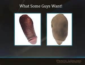 penis size enhancement picture 14