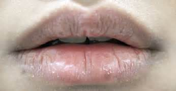 for chapped lips picture 17