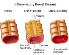 bowel disorders picture 6