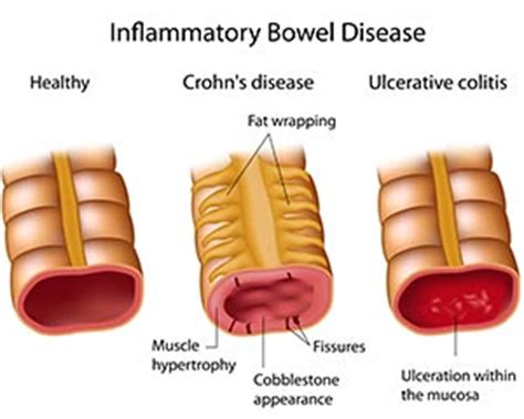 colon disorders picture 11