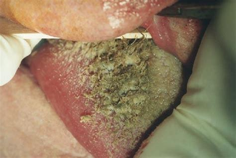 furry wart picture 14