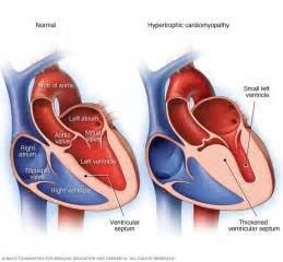 centimeter thickening of heart muscle picture 1