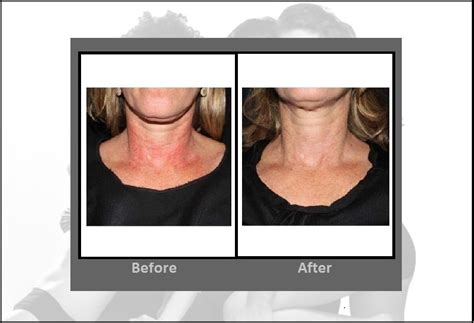 laser hair removal ct picture 5