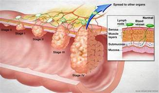 after colon cancer sugery the tumor the size picture 5