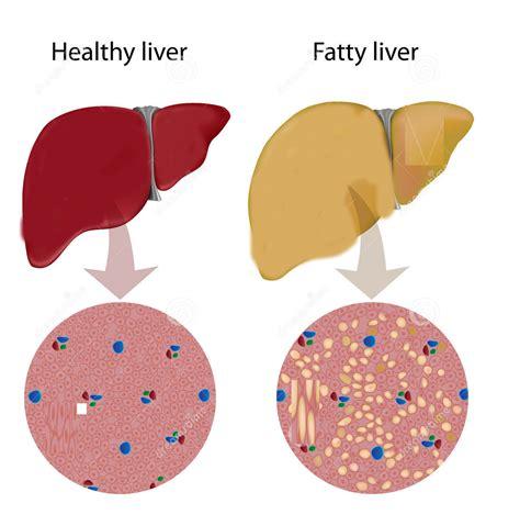 fatty liver disease picture 3