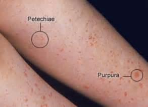 skin rash and leukemia picture 6
