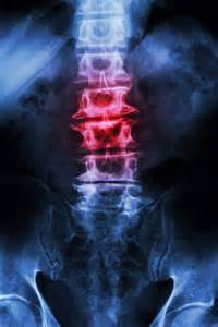 degenerative joint arthritis picture 10