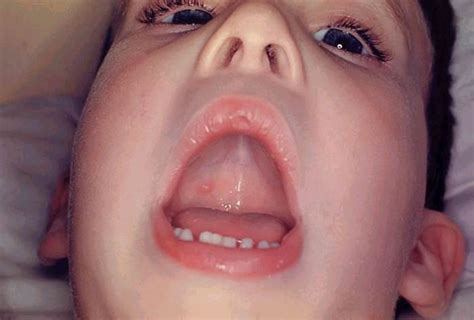 can u give someone hsv1 from oral picture 4