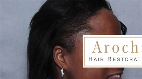 africa american lazer hair removal, houston, tx picture 1