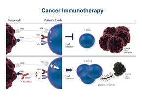 promising treatments for bladder cancer 2013 picture 9