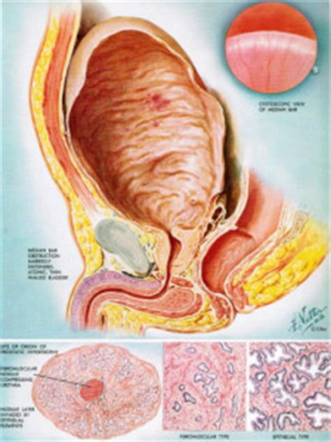 Hardening of the prostate picture 2