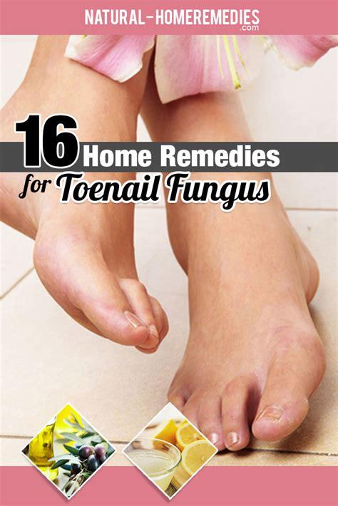toenail fungus homemade remedy picture 10