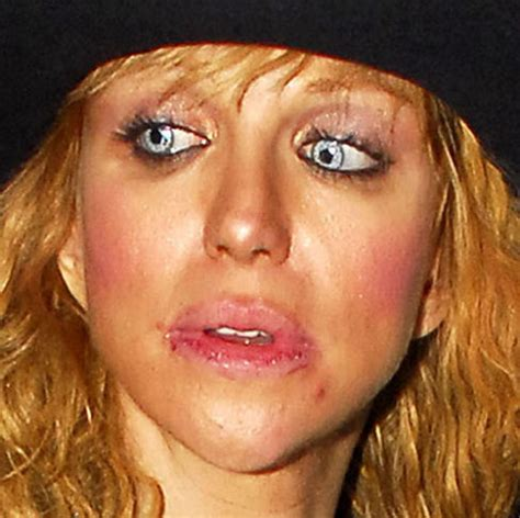 celebrities with herpes picture 5