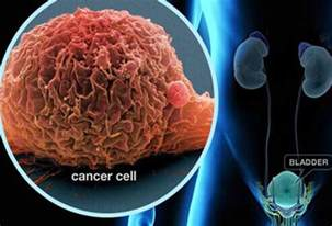 bladder cancer symtoms picture 6