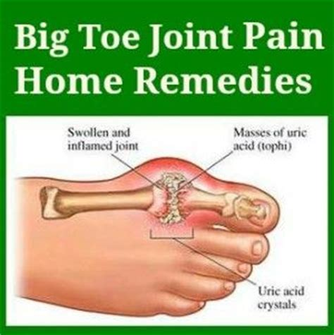 tight joint remedies picture 15