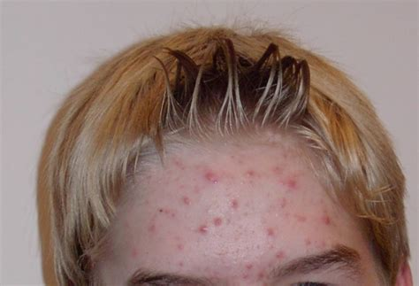 cortisol skin problems picture 10