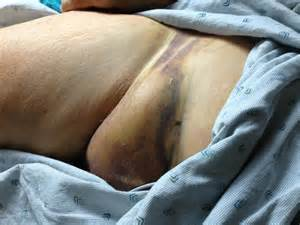 painful erection after catheterization picture 5