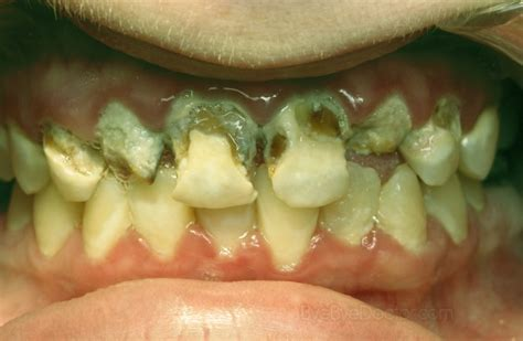 ruin teeth picture 2