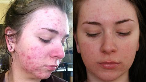 foundation for acne and aging picture 5