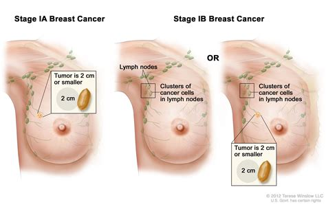 changes in skin after hysterectomy picture 13
